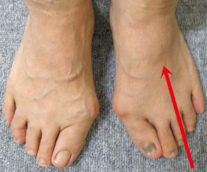 足 の 甲 骨 出っ張り 痛み