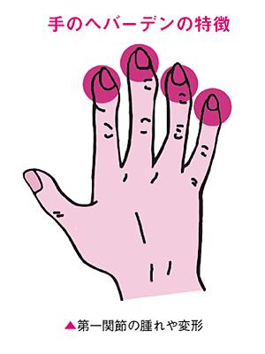 手のへバーデンの特徴