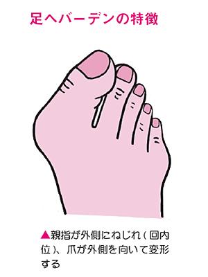 足へバーデンの特徴
