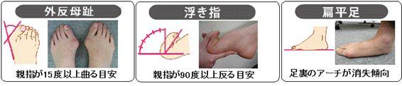 外反母趾・浮き指・扁平足の目安