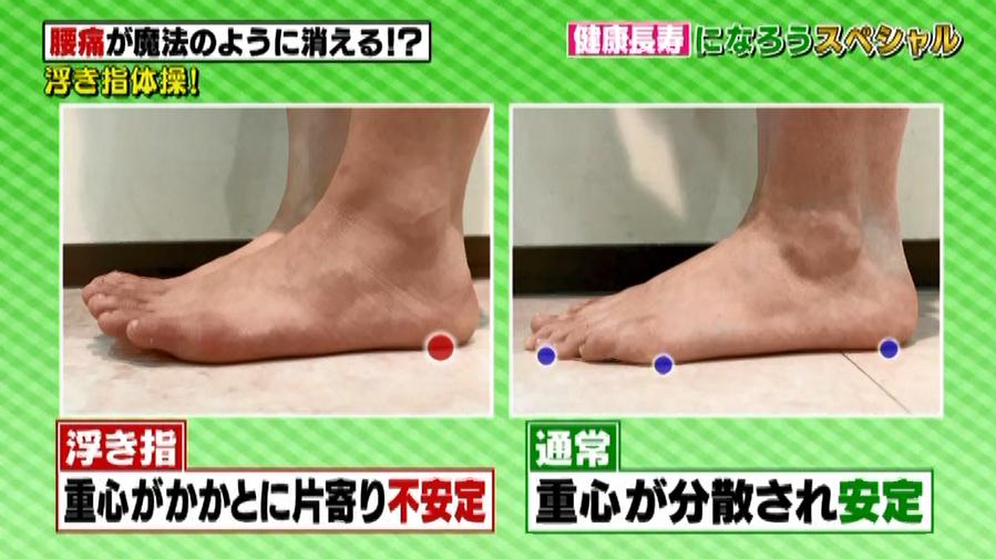 正常な足と浮き指の足の違い